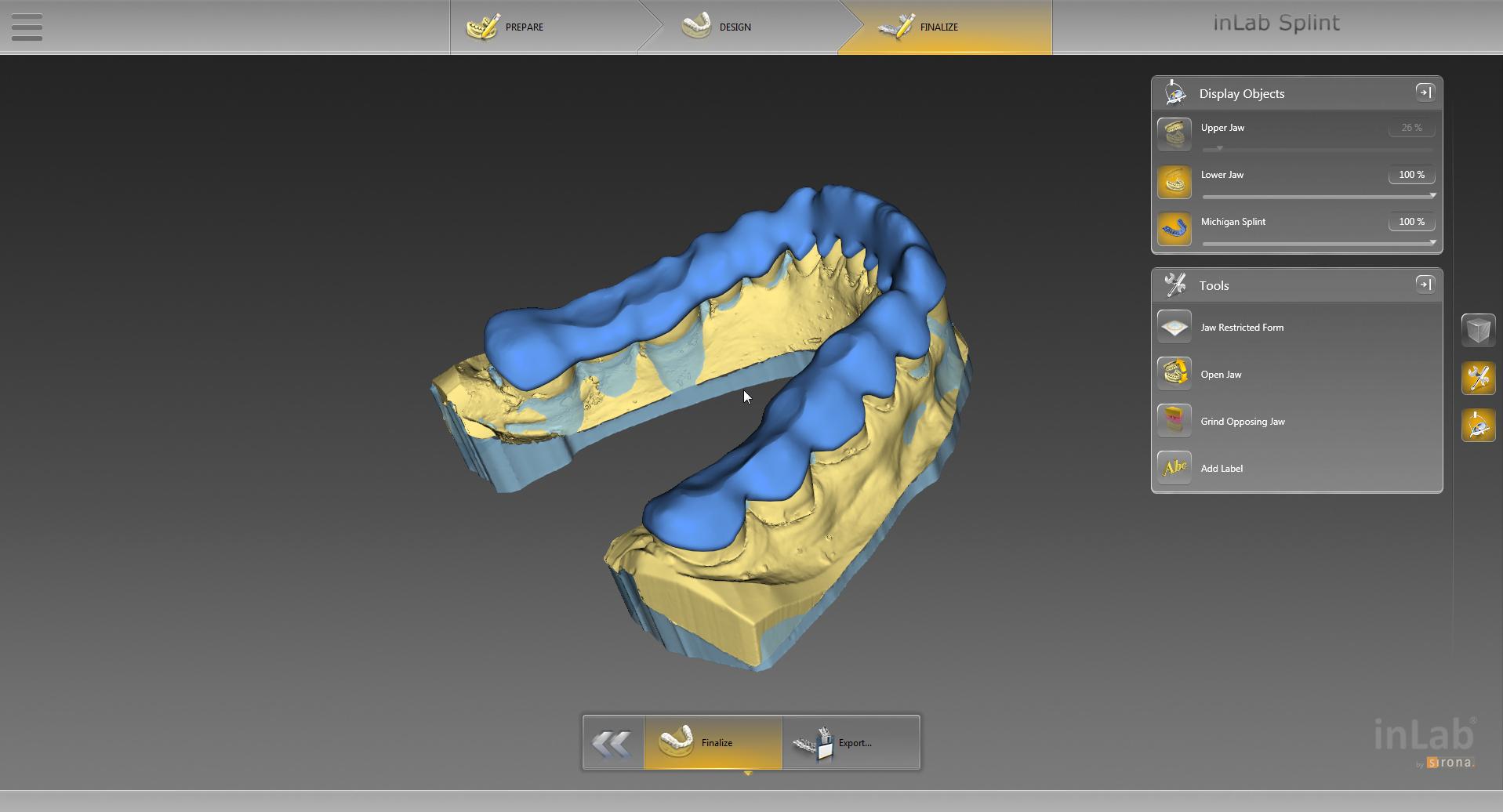 Dentsply Sirona Cad Cam Der Gesamte Digitale Workflow F 252 R